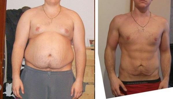Минус 25 кило за месяц: Новый ЖИРОСЖИГАТЕЛЬ превзошел липосакцию!